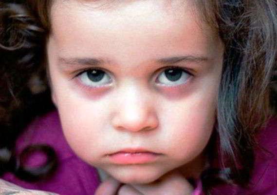 синяки под глазами у ребенка как избавиться