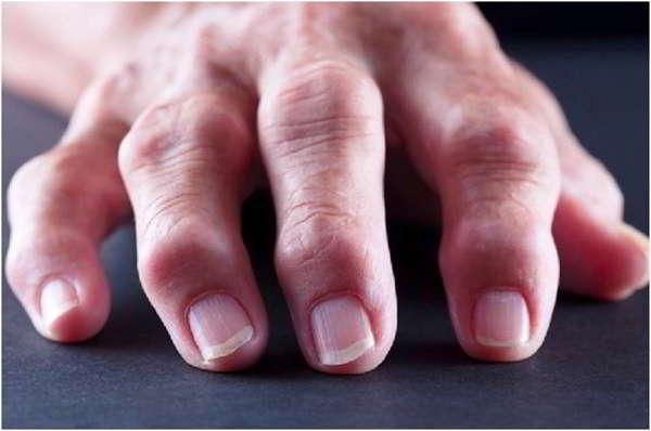 Lechenie-artrita-buzinoj-krasnoj
