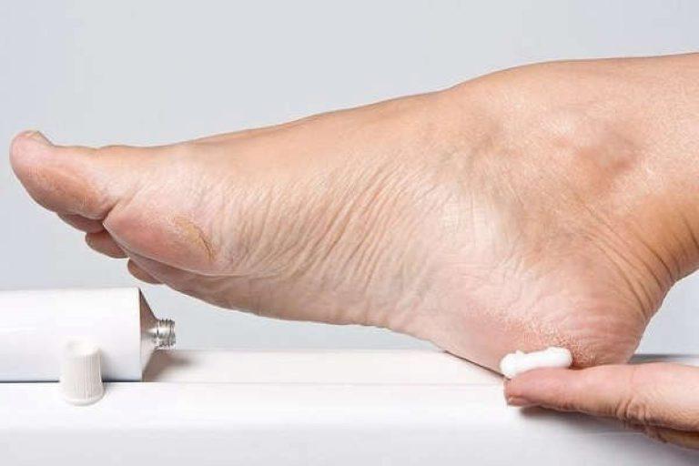 Натоптыш на мизинце ноги как избавиться