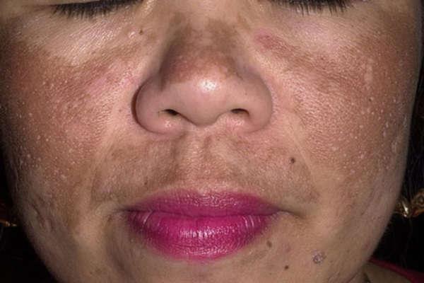 пигментные пятна на лице как избавиться отзывы