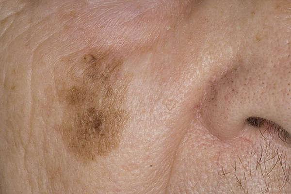 возрастные пигментные пятна на лице как избавиться