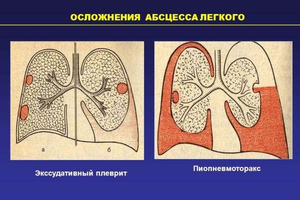 лечение абсцесса легкого антибиотиками