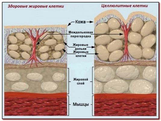 Косметические масла при целлюлите и растяжках