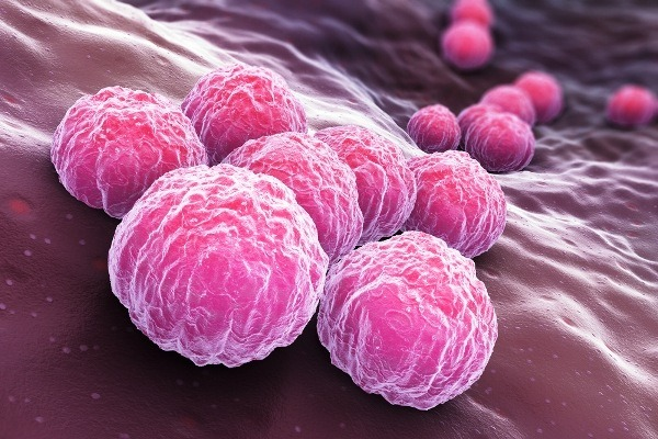 Хламидиоз у женщин симптомы, признаки, препараты для лечения