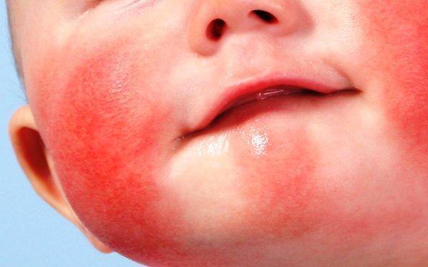 allergicheskij-dermatit-u-rebenka