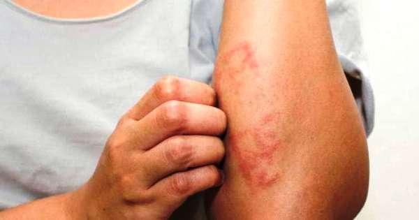 allergicheskij-dermatit-simptomy