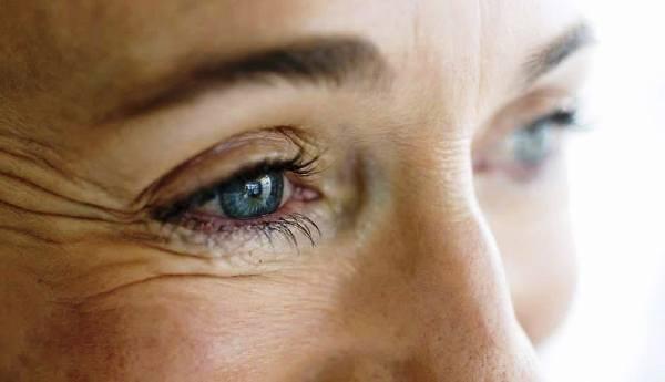 морщины вокруг глаз после 50