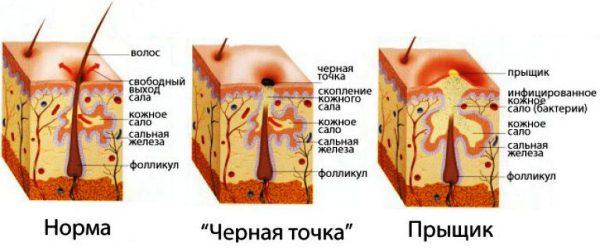 причины появления черных точек на носу