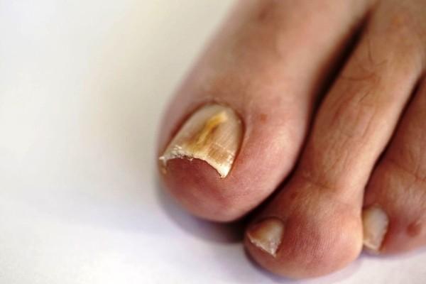 грибок ногтей на ногах запущенная форма
