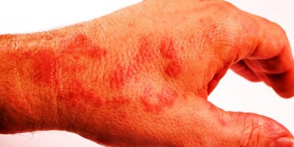 дерматит рука фото лечение