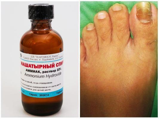нашатырный спирт для лечения грибка ногтей на ногах
