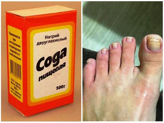 лечение ногтей ног содой в домашних условиях