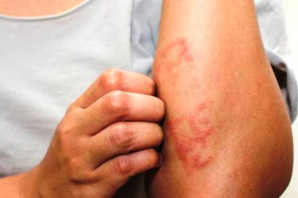 дерматит виды токсидермия