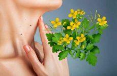 Чистотел: лечебные свойства, противопоказания, рецепты
