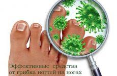Эффективные и самые лучшие средства от грибка ногтей на ногах