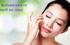 Прыщи на лице – как лечить и избавиться быстро и навсегда
