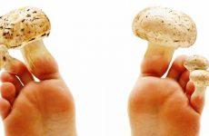 Как вылечить грибок ногтей на ногах чистотелом рецепты, отзывы, советы