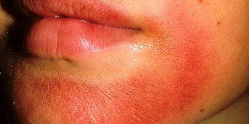 Аллергический дерматит: причины, симптомы и лечение