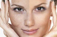 Как избавиться от пигментных пятен на лице: салонные и домашние способы