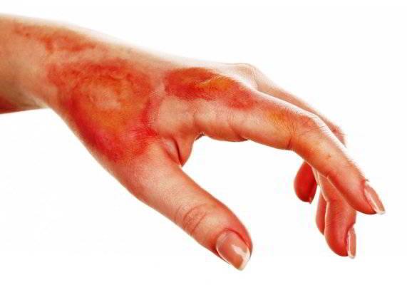 эхинацея лечебные свойства и противопоказания