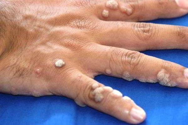 чистотел лечение кожных заболеваний бородавки
