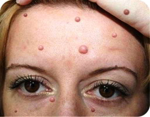 чистотел лечение кожных заболеваний фото