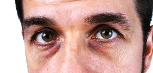 как избавиться от синяков под глазами у мужчин