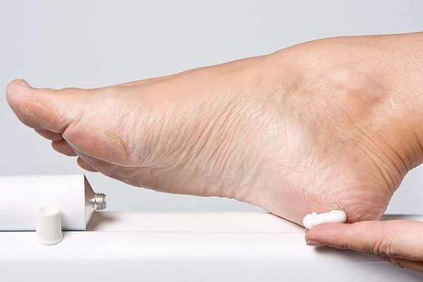 как избавиться от натоптышей на пальцах ног в домашних условиях навсегда