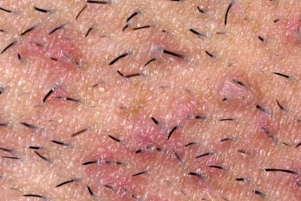 почему врастают волосы после эпиляции