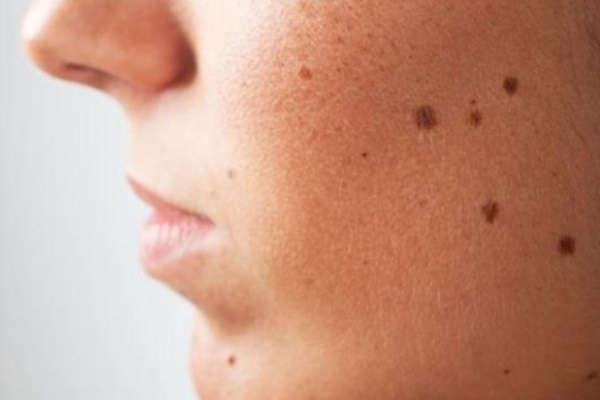 избавиться от пигментного пятна на лице навсегда