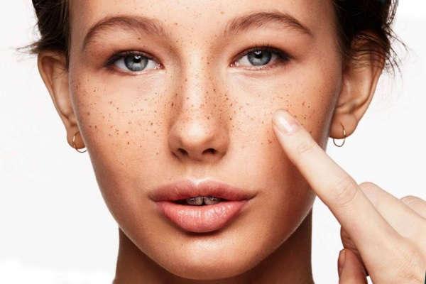 пигментные пятна на лице как избавиться быстро