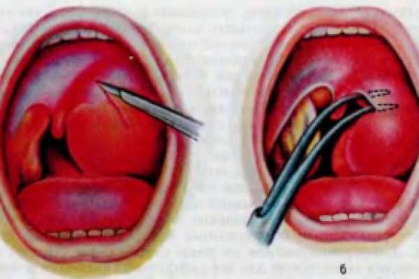абсцесс горла симптомы и лечение у взрослых