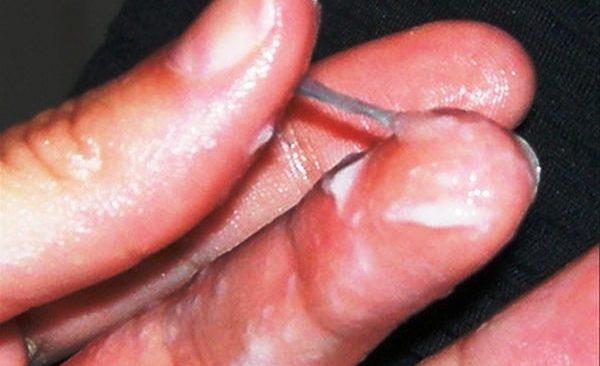 кандидозы у женщин симптомы фото в интимной зоне