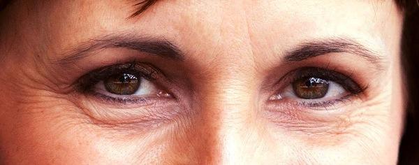 морщины вокруг глаз после 40