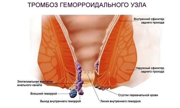 tromboz-gemorroidalnogo-uzla