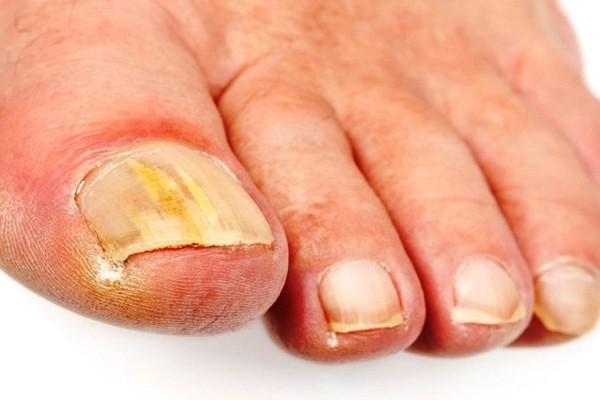способы лечения грибка ногтей народными рецептами