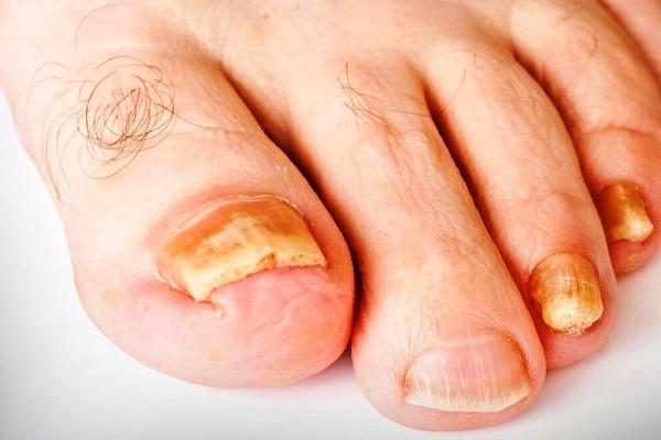 грибок ногтя на ноге