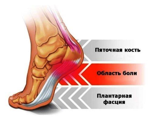 шпора на ноге пятка боль