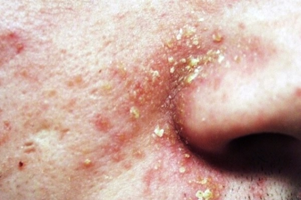 лечить дерматит мази и кремы