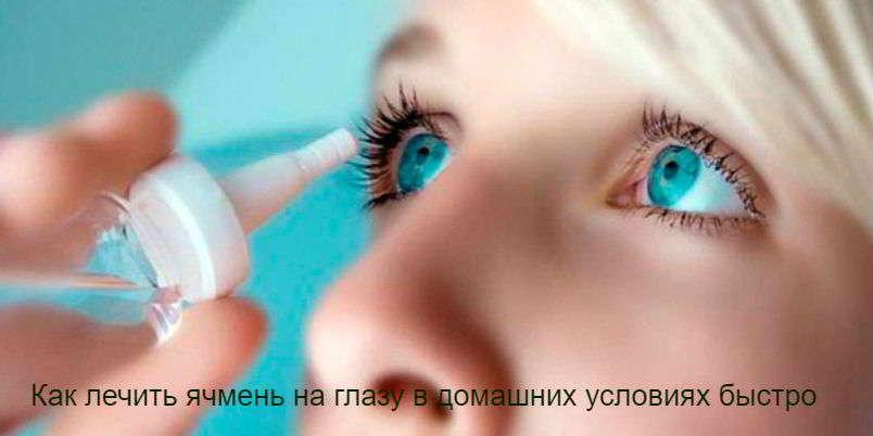 Ячмень на глазу: как быстро вылечить в домашних условиях