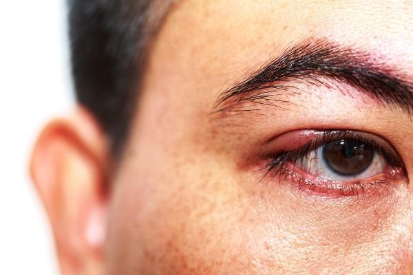 как лечить ячмень на глазу в домашних условиях быстро