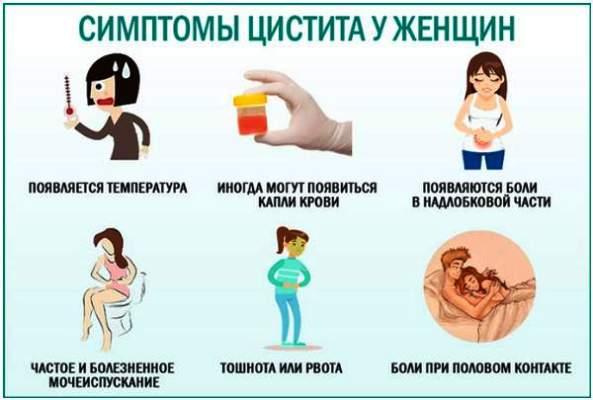 cistit-u-zhenshchin-simptomy