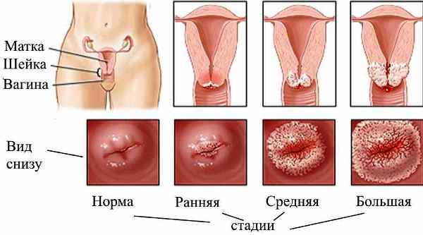эрозия шейки матки лечение