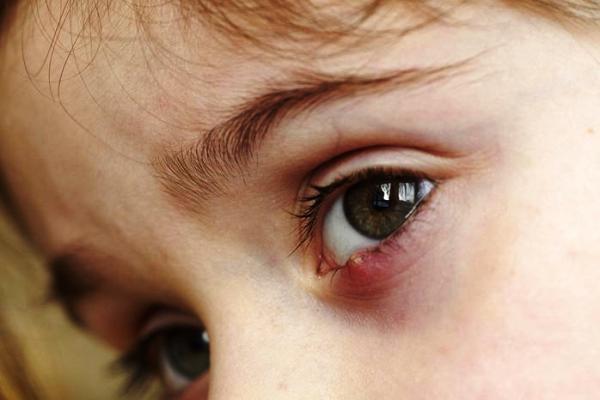 лекарство для лечения ячменя у ребенка