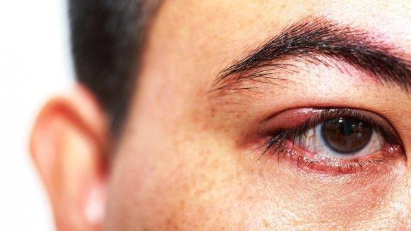ячмень на глазу чем лечить лекарства