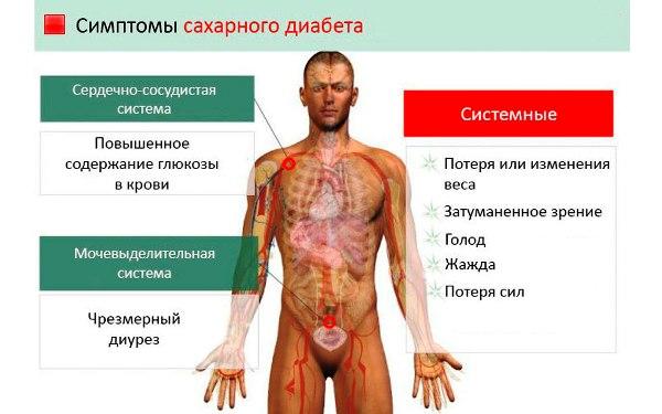 simptomy-saharnogo-diabeta-u-muzhchin