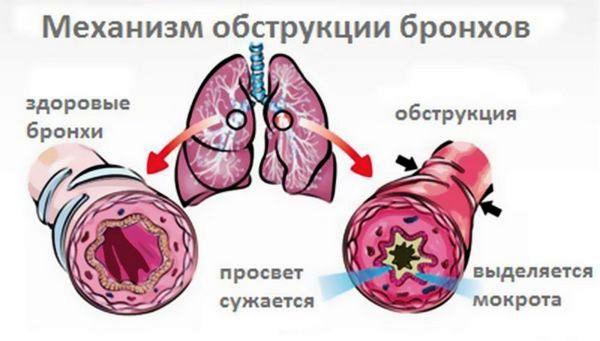 бронхит лечение без температуры