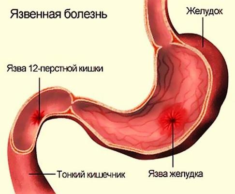 язва 12-перстной кишки и желудка