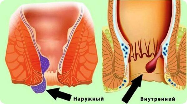 геморрой беременность лечение