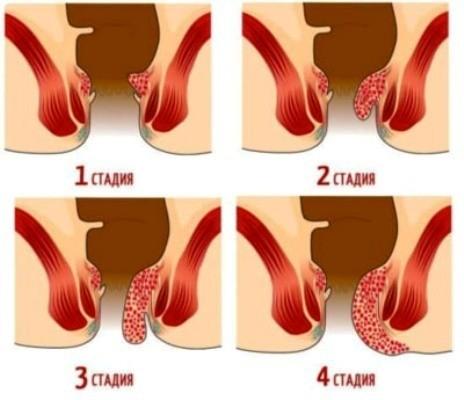 симптомы геморроя у мужчин и его признаки